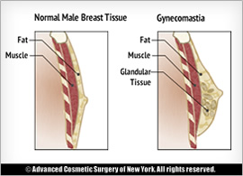 gynecomastia-information